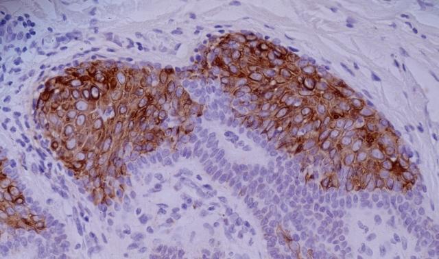 Anti-Cytokeratin 10 Monoclonal Antibody (Clone:VIK-10)