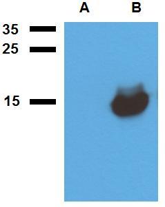 Anti-Mycobacterium tuberculosis antigen Acr1 Polyclonal Antibody
