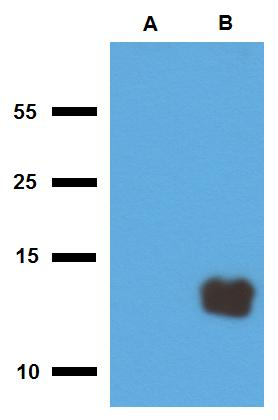 Anti-Mycobacterium tuberculosis antigen Tb10.3 Polyclonal Antibody