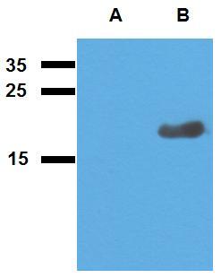 Anti-Mycobacterium tuberculosis antigen Acr2 Polyclonal Antibody