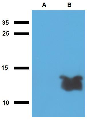 Anti-Mycobacterium tuberculosis antigen Tb7.7 Polyclonal Antibody