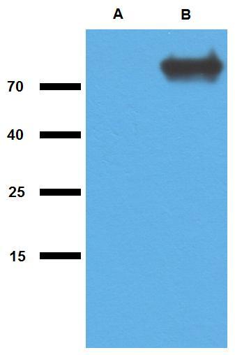 Anti-Mycobacterium tuberculosis antigen GlcB Polyclonal Antibody