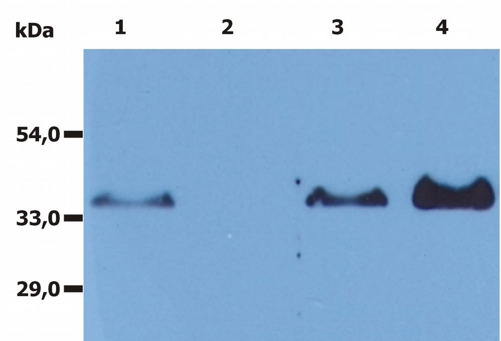 Anti-CD20 Monoclonal Antibody (Clone:MEM-97)