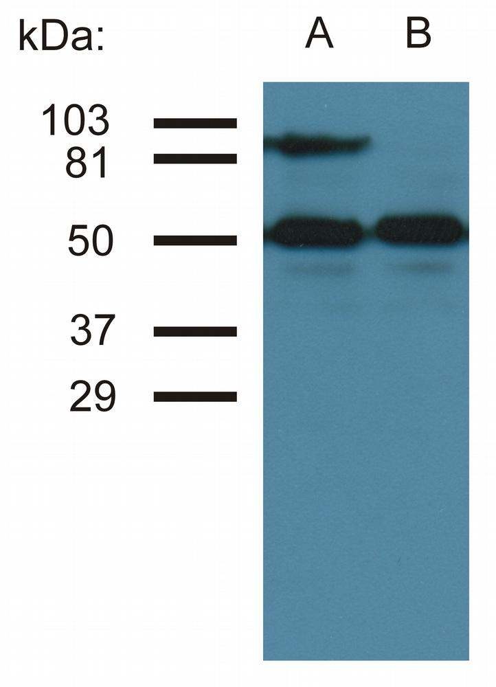 Anti-CD54 / ICAM-1 Monoclonal Antibody (Clone:MEM-111)