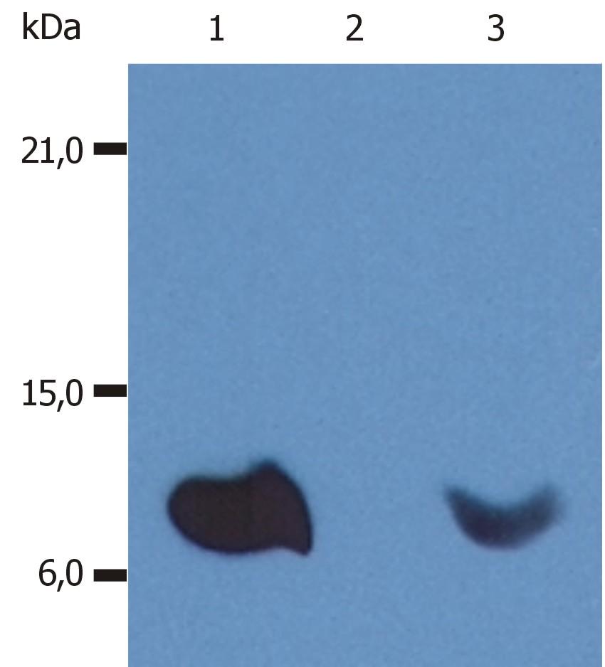 Anti-beta2-Microglobulin Monoclonal Antibody (Clone:B2M-01)