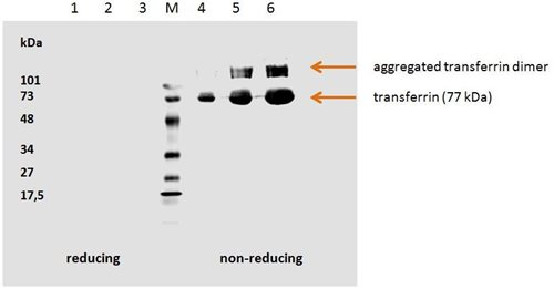 Anti-Transferrin Monoclonal Antibody (Clone:HTF-14)