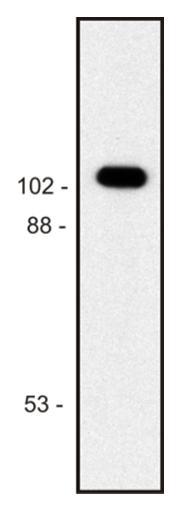 Anti-beta-Galactosidase Monoclonal Antibody (Clone:BG-02)