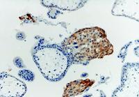 Anti-HLA-G Monoclonal Antibody (Clone:MEM-G/1)