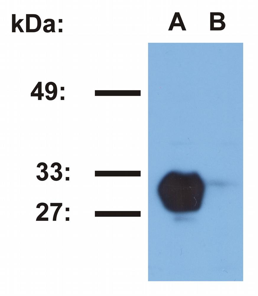 Anti-HLA-DR1 (empty) Monoclonal Antibody (Clone:MEM-267)