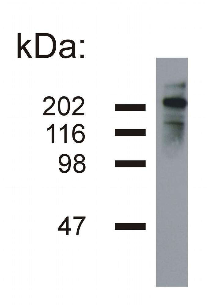 Anti-Neurofilament heavy protein Monoclonal Antibody (Clone:NF-05)