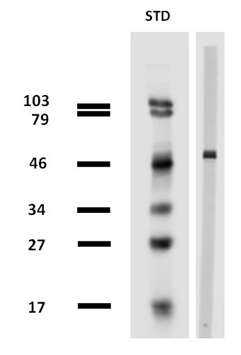 Anti-beta-tubulin / TUBB Monoclonal Antibody (Clone:TU-13)