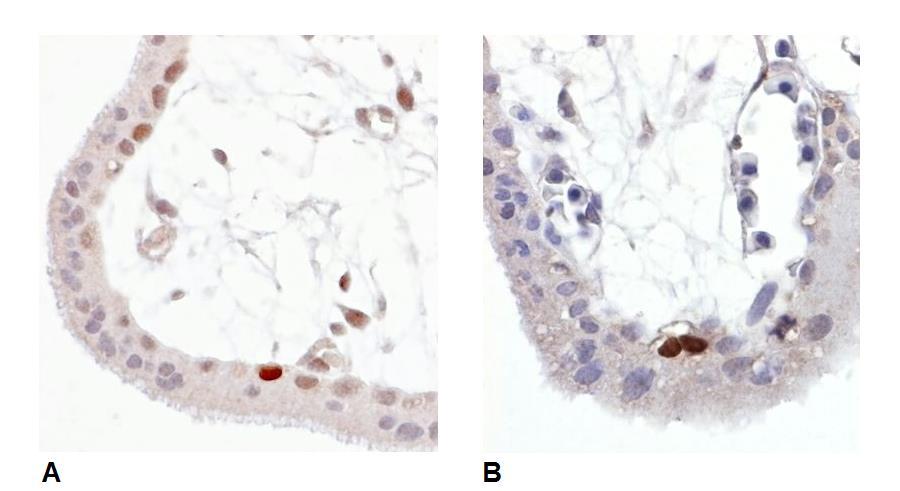 Anti-p53 (Phospho-Ser392) Monoclonal Antibody (Clone:FP3.2 [FPS392])
