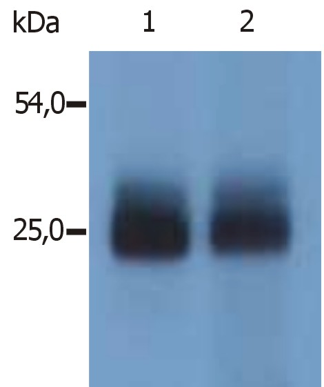 Anti-NTAL / LAB Polyclonal Antibody
