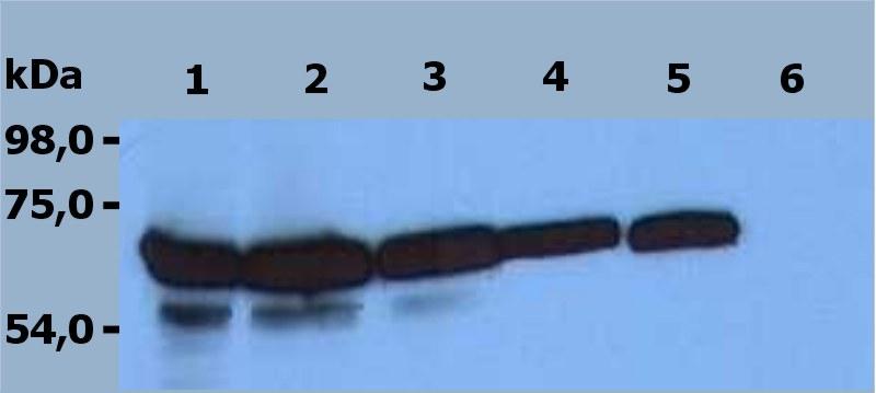 Anti-ZAP-70 Monoclonal Antibody (Clone:ZAP-03)