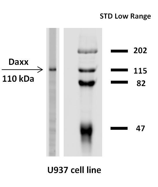 Anti-Daxx / DAP6 Monoclonal Antibody (Clone:DAXX-03)