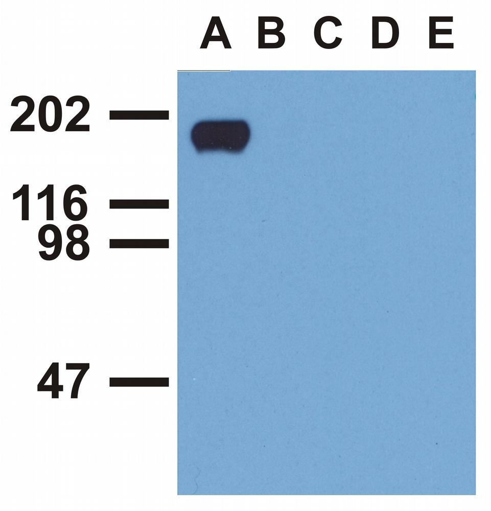 Anti-EGFR (Phospho-Tyr992) Monoclonal Antibody (Clone:EM-12)
