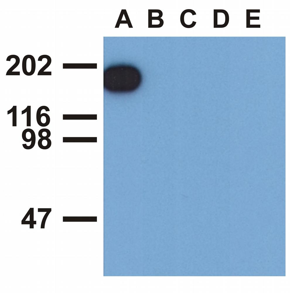 Anti-EGFR (Phospho-Tyr1173) Monoclonal Antibody (Clone:EM-13)