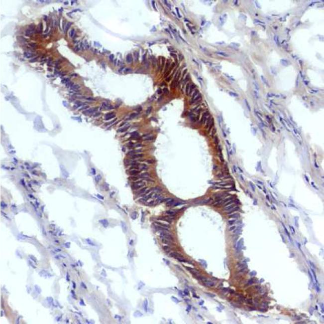 Anti-Nitrotyrosine Monoclonal Antibody (Clone:EM-30)