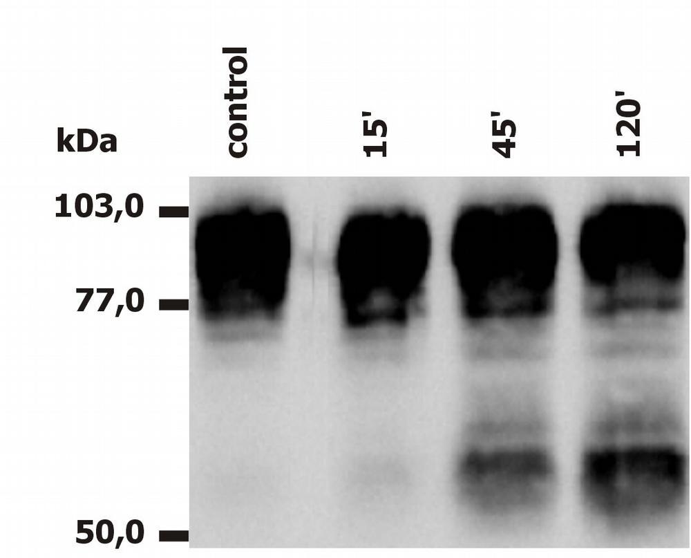Anti-CD18 / Integrin beta2 subunit Monoclonal Antibody (Clone:MEM-148)-Low Endotoxin