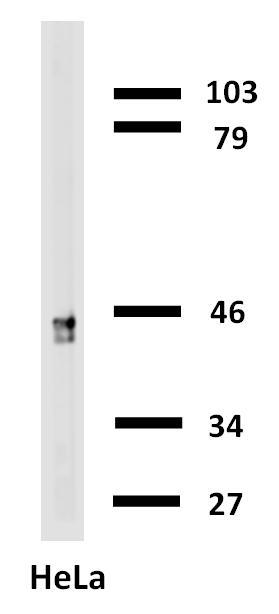 Biotin Conjugated, Anti-Cytokeratin 18 Monoclonal Antibody (Clone:C-04)