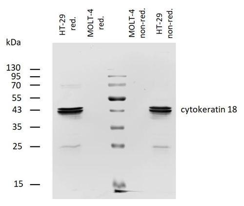Biotin Conjugated, Anti-Cytokeratin 18 Monoclonal Antibody (Clone:DA-7)