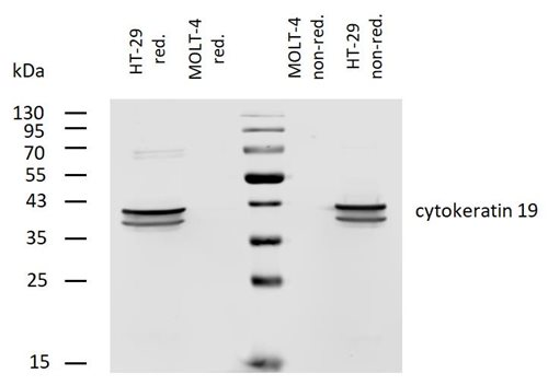 Anti-Cytokeratin 19 Monoclonal Antibody (Clone:A53-B/A2)-Biotin Conjugated