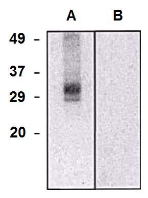 PE Conjugated, Anti-CLIC5a Monoclonal Antibody (Clone:CLIC5-02)