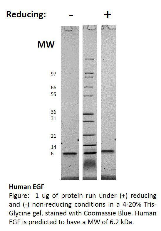 Human Epidermal Growth Factor (AF)
