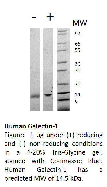 Human Galectin-1 (AF)