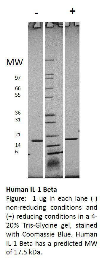Human Interleukin-1 beta