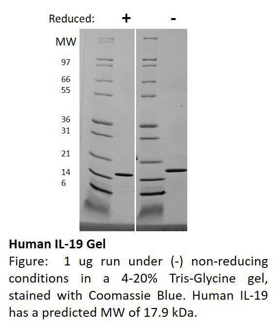 Human Interleukin-19 (AF)
