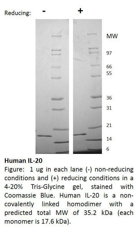 Human Interleukin-20