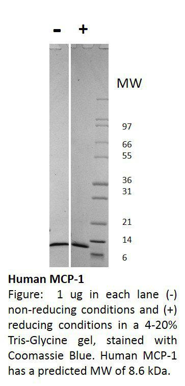 Human Monocyte Chemotactic Protein-1 (CCL2)