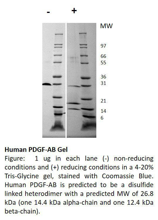 Human Platelet Derived Growth Factor-AB