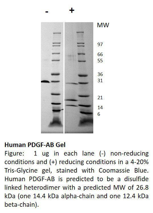 Human Platelet Derived Growth Factor-AB (AF)