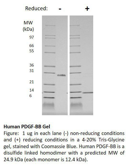 Human Platelet Derived Growth Factor-BB