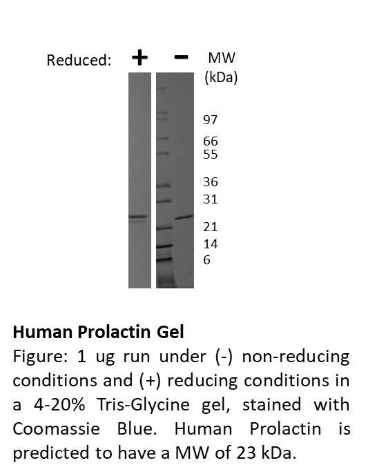 Human Prolactin
