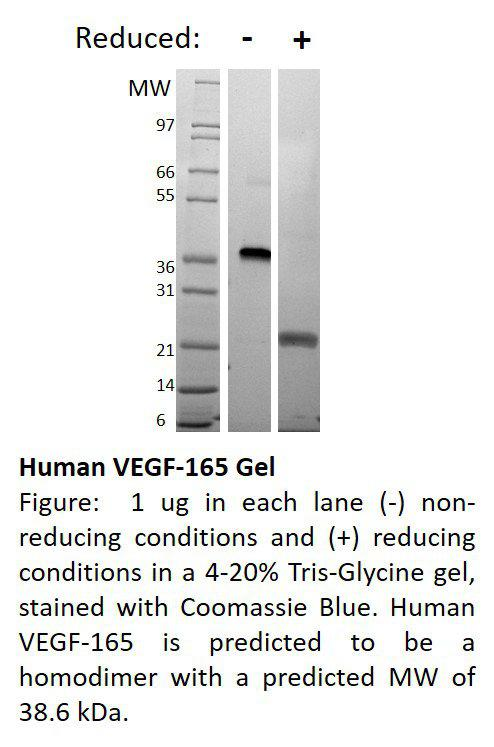 Human Vascular Endothelial Growth Factor-165 (AF)