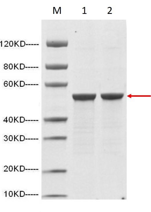 SARS-CoV-2/COVID-19/nCOV Nucleocapsid protein (His Tag)