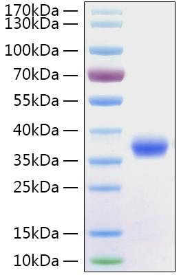Recombinant Sars-Cov-2 (COVID-19/2019-nCov) Spike RBD Protein