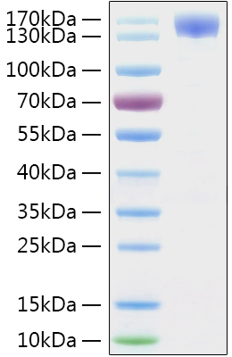 Recombinant Sars-Cov-2 (COVID-19/2019-nCov) Spike S1 Protein