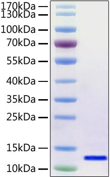 Recombinant SARS-CoV-2 Envelope Protein