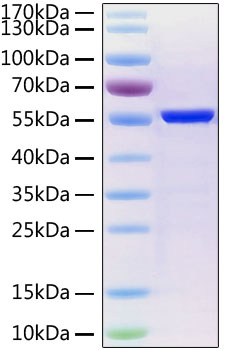 Recombinant SARS-CoV-2 Nucleocapsid Protein His Tag