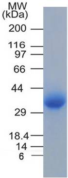 Recombinant SARS-CoV-2 Spike RBD Protein His Tag (330-554 aa)
