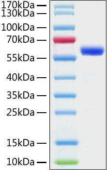 Recombinant SARS-CoV-2 Spike RBD Protein, mFc tag