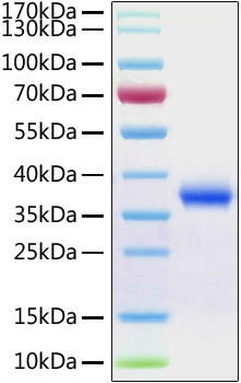 Recombinant 2019-nCoV Spike RBD Protein His tag