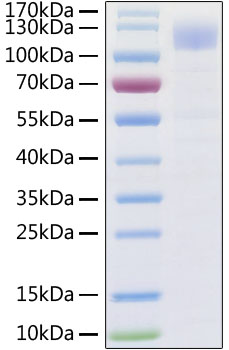 Recombinant SARS-CoV-2 Spike S1 Protein His tag