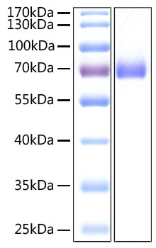 Recombinant SARS-CoV-2 Spike S2 ECD Protein His tag