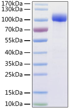 Recombinant Human ACE2 Protein with His and Avi tag