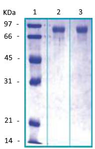 PI16 Recombinant Protein